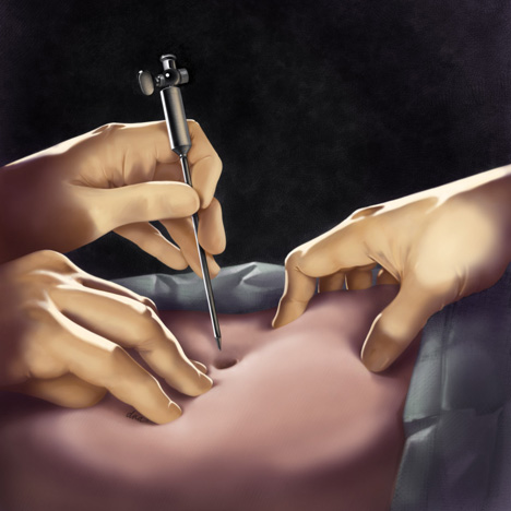 AlexandraBaker_DNAIllustration-surgery.jpg