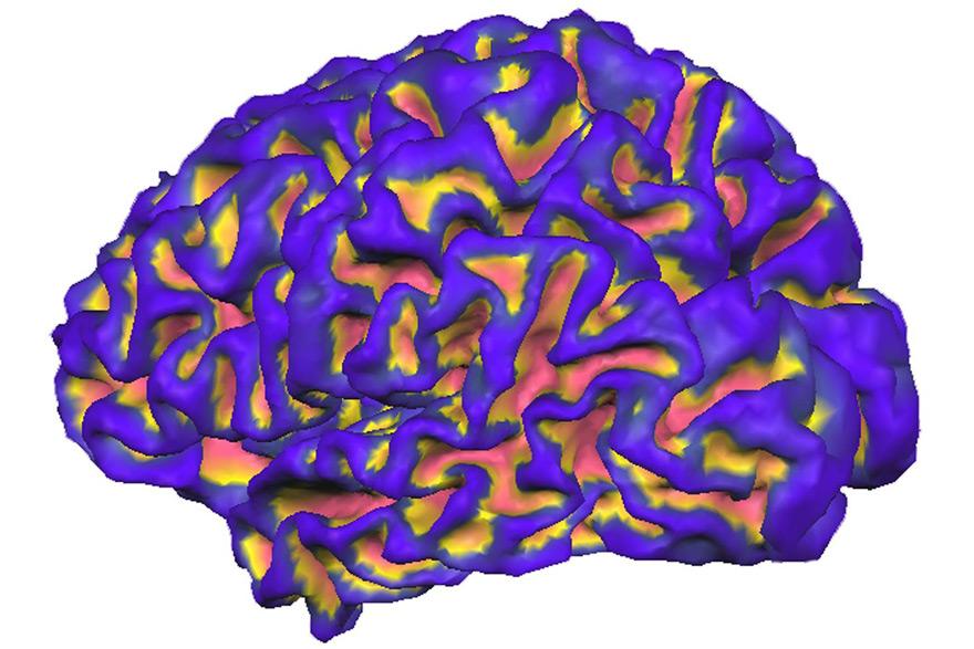 MerelBekking-Brain.jpg