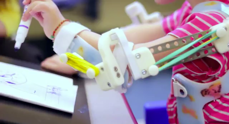 "WREX, 3D Printed ""Magic Arms"" and the Future of Pediatric Prosthetics - Core77"