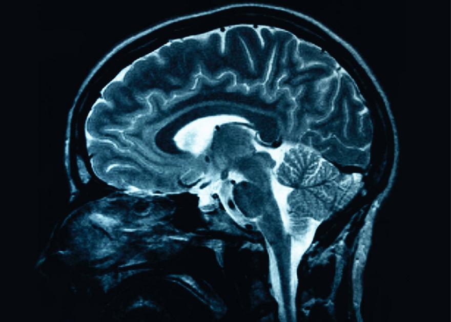 3D-Printed Brain Surgery - Core77