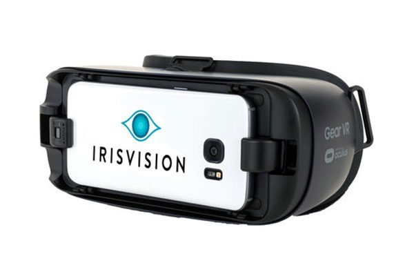 IrisVision: A Smartphone/Goggles Combination Intended to be a Cheaper, Less-Invasive Alternative to Retinal Chip Implants for the Visually Impaired